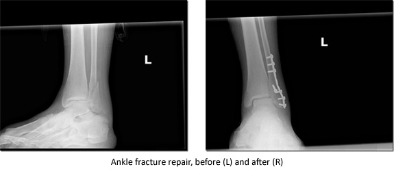ankle fracture repair